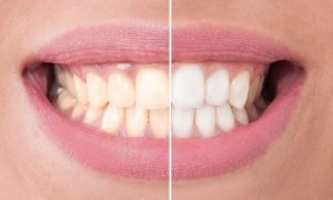 Cosmetic dentistry   Prime Dental Associates