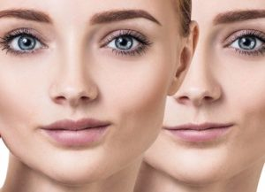 Get Cosmetic Injectables | Restylane  | JUVÉDERM®  Johnsburg dental office